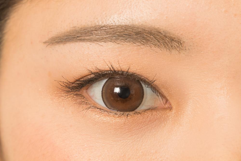 目頭切開で傷跡が強く残る2つのリスクをチェックしよう!